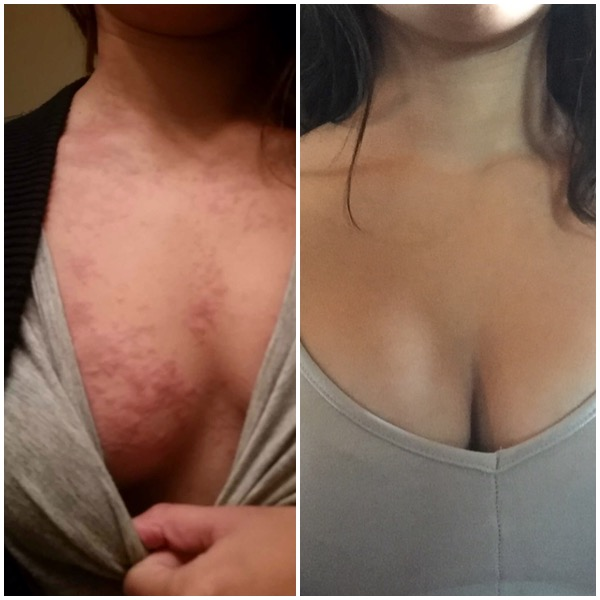 by Sore and breast redness